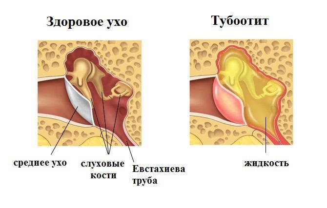 Лечение Турбоотита Сурдологический центр ГУТА-КЛИНИК